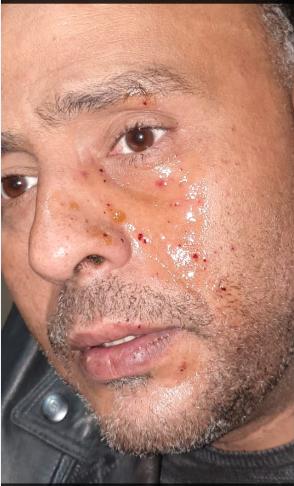 اصابة محمود عبد المغنى