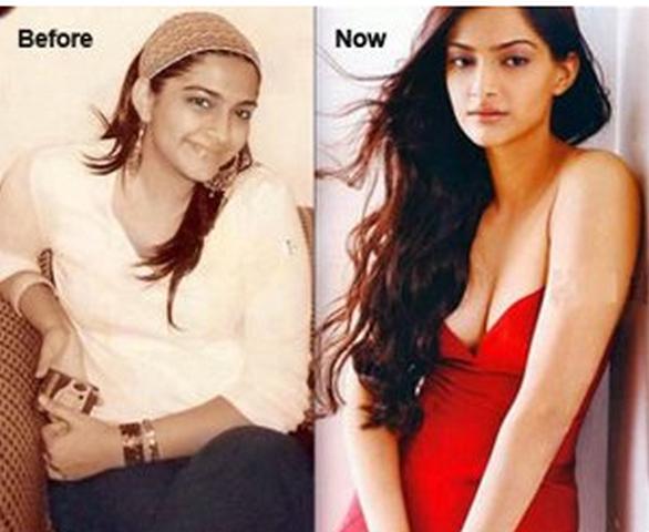 Sonam-Kapoor-fat-to-fit-photo1