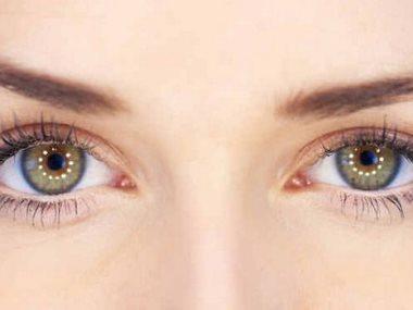 مشاكل العين