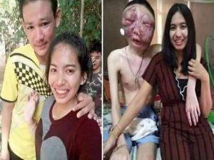 صور.. قصة فتاة تايلاندية ساندت صديقها المصاب بسرطان العين حتى الموت